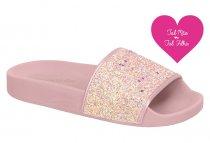 Imagem - Chinelo Infantil Feminino Molekinha Slide Glitter 2311105 - 31000983