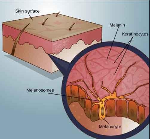 hipercromia