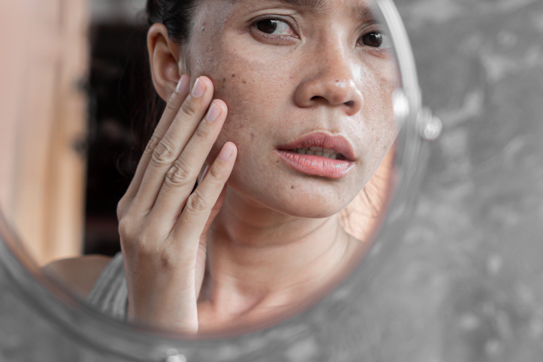 Hipercromias: Formação das Manchas de Pele e Possíveis Tratamentos